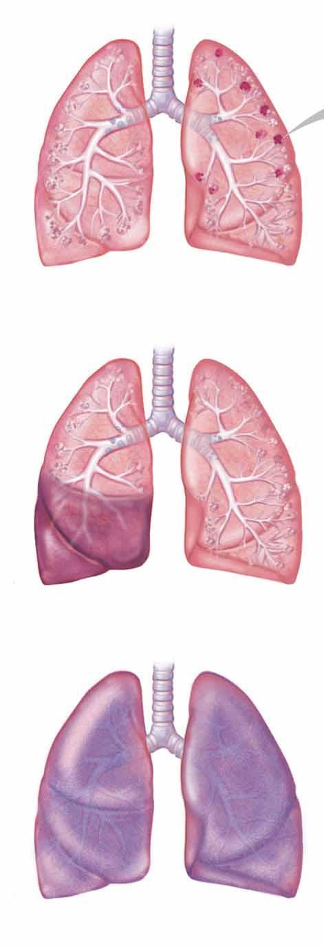 légúti papillomatosis gyakori férgek a férgek kezelésében