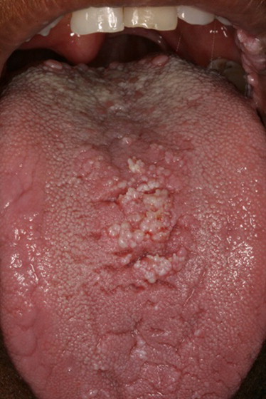 condyloma acuminata hiv ami papilloma vírust jelent