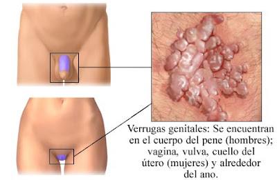 condyloma és ureaplasma