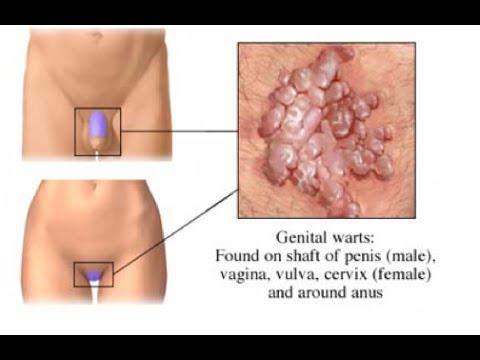 Klinikai vizsgálatok a Condylomata Acuminata - Klinikai vizsgálatok nyilvántartása - ICH GCP
