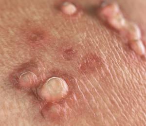 hpv vírus warzen entfernen