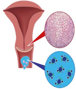 papilloma vírus és méheltávolítás