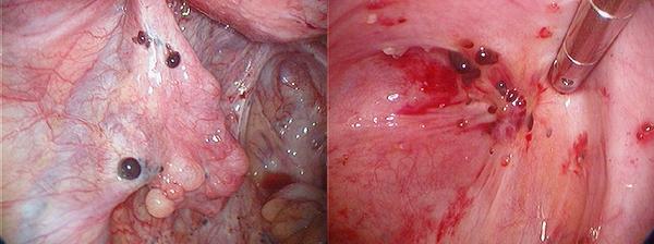 hashártyarák hátfájás féregkorbács
