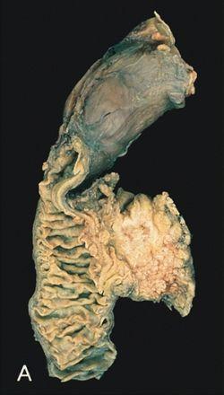 hasnyálmirigy endokrin rák