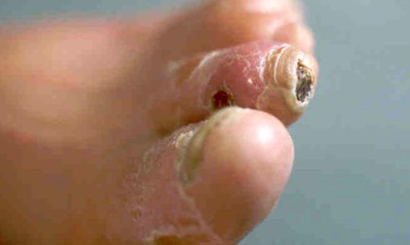 gyógyító sebek az ujjak között a test méregtelenítése almával