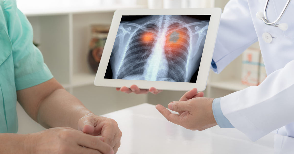 A tüdőrák korai jelei