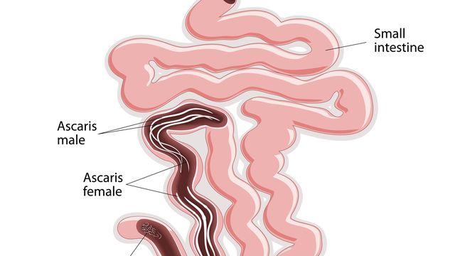 enterobius vermicularis ova kezelés
