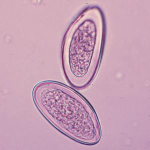 enterobius vermicularis szakaszai