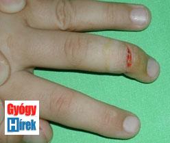 gyógyító sebek az ujjak között hogyan lehet meggyógyítani a fejhallgatót?