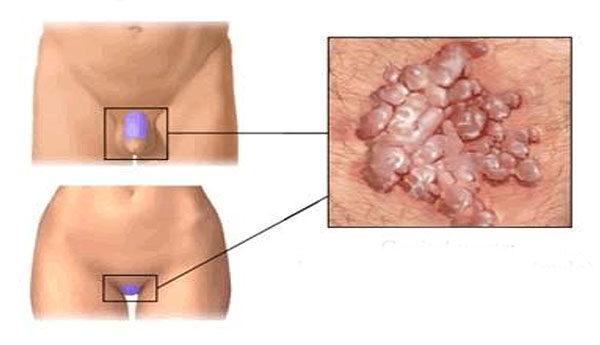 condylom fertőzés helmint kezelés kisgyermekeknél