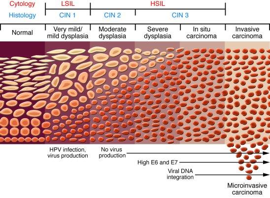 Orvos válaszol – HPV-Centrum