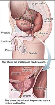 Prostatitis papillomavírussal