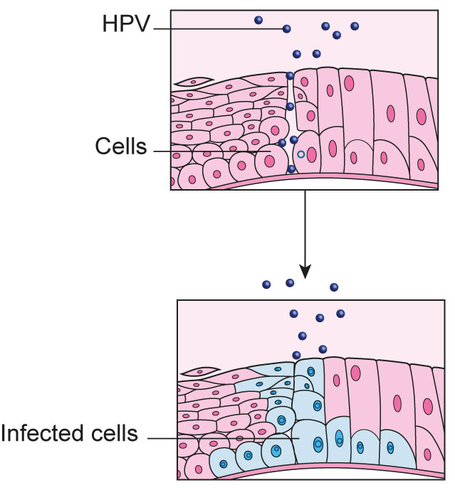 HPV-t legyőzni | nlc