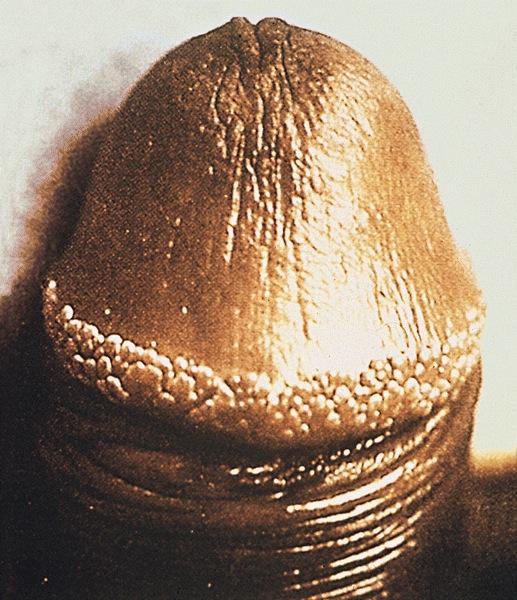 papilloma vakcina vírus monza petefészekrák állkapocsfájdalom