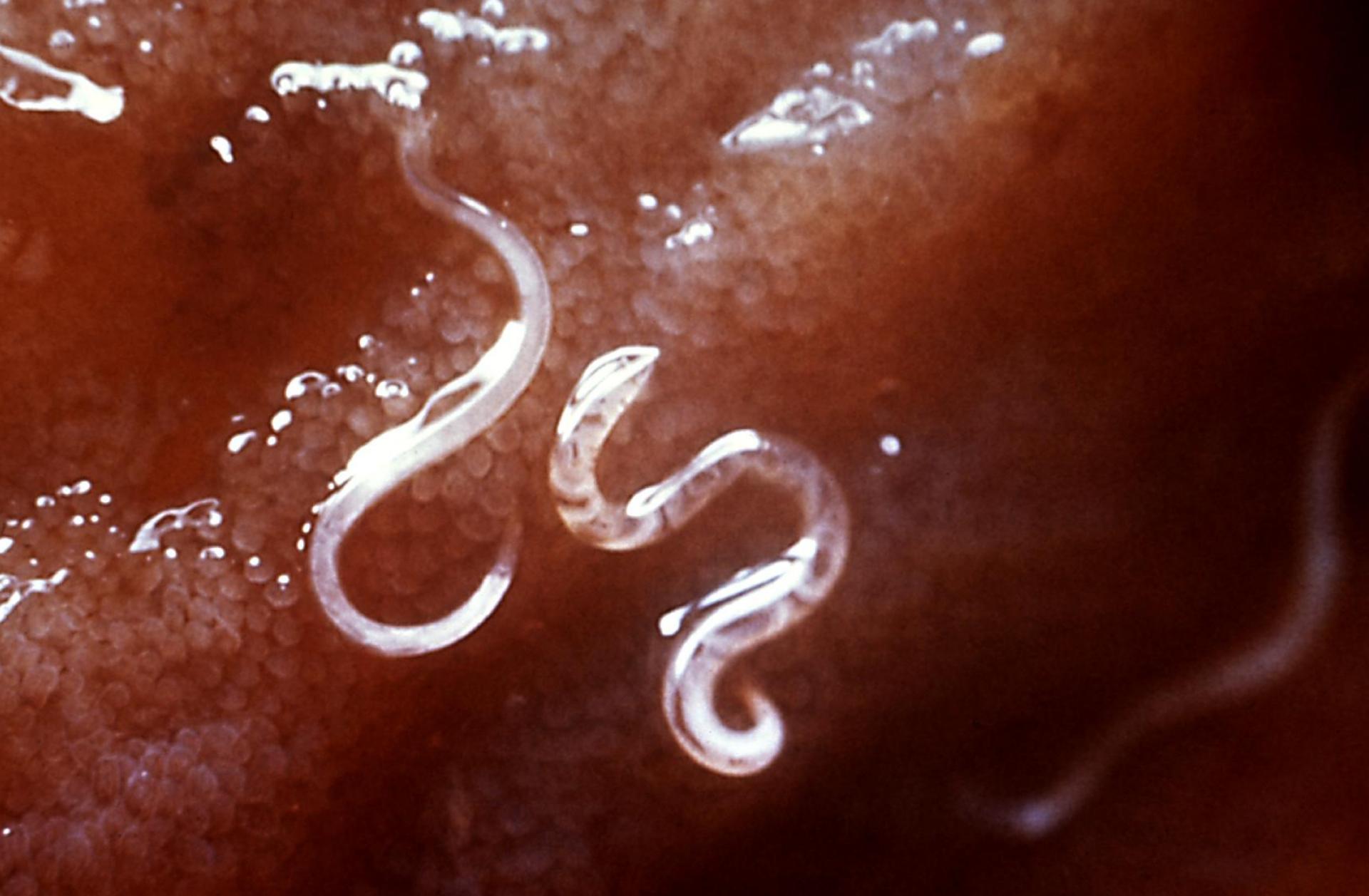 a faley megtisztítja a paraziták testét az urethralis condyloma eltávolítása