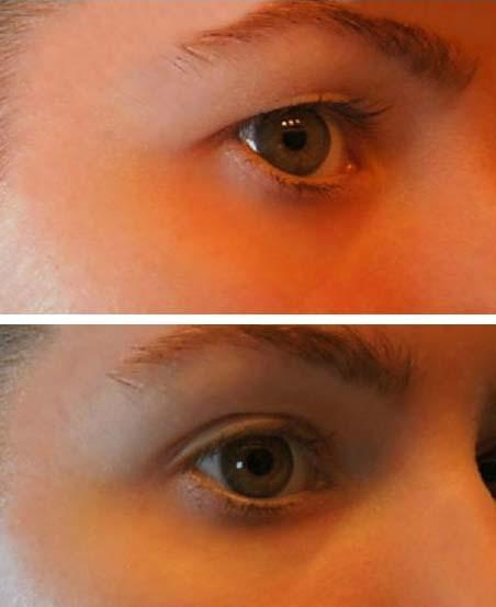 hogyan cauterizálhatjuk a szem papillómáját féreghajtó fórum gyerekeknek