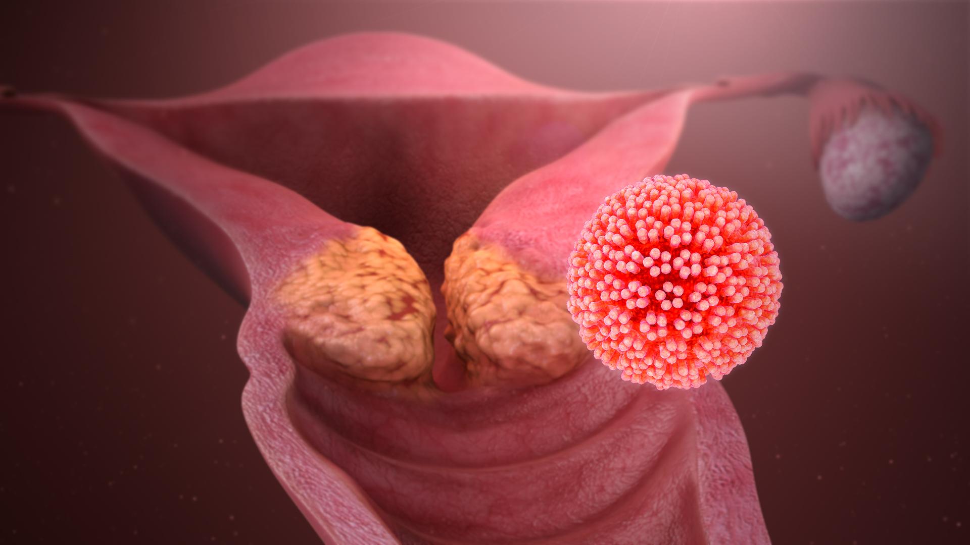 papilloma vírus mossa meg a kezét