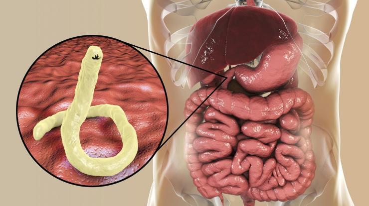 paraziták az egészségre A genitális szemölcsök önmagukban elmúlnak