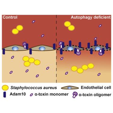 Enterotoxin termelő baktérium által okozott ételmérgezések - Solutix Boulardii