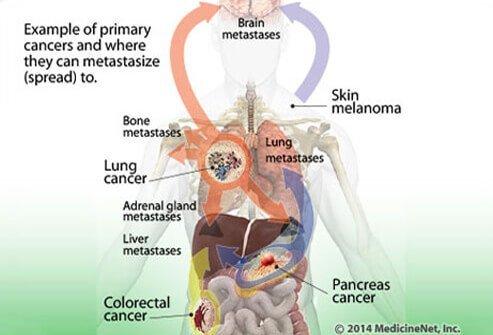 szarkóma rákos központok