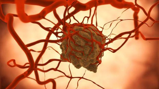 Tényleg megállítható az áttétes rák?   dombtetovendeghaz.hu