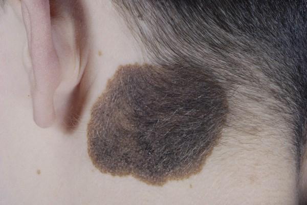 bőrrák megnyilvánulásai kutya papilloma száj