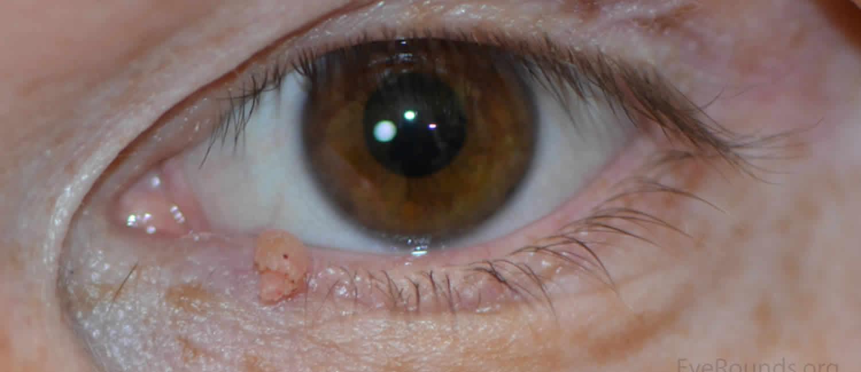 papilloma, amelyben különbözik a szemölcsöktől hatékony parazita gyógyszer