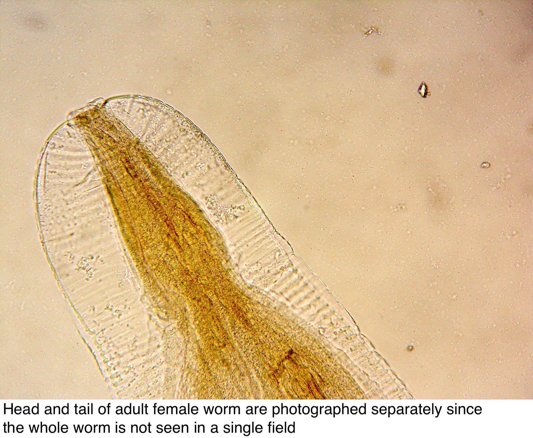 enterobius vermicularis vagy oxyure