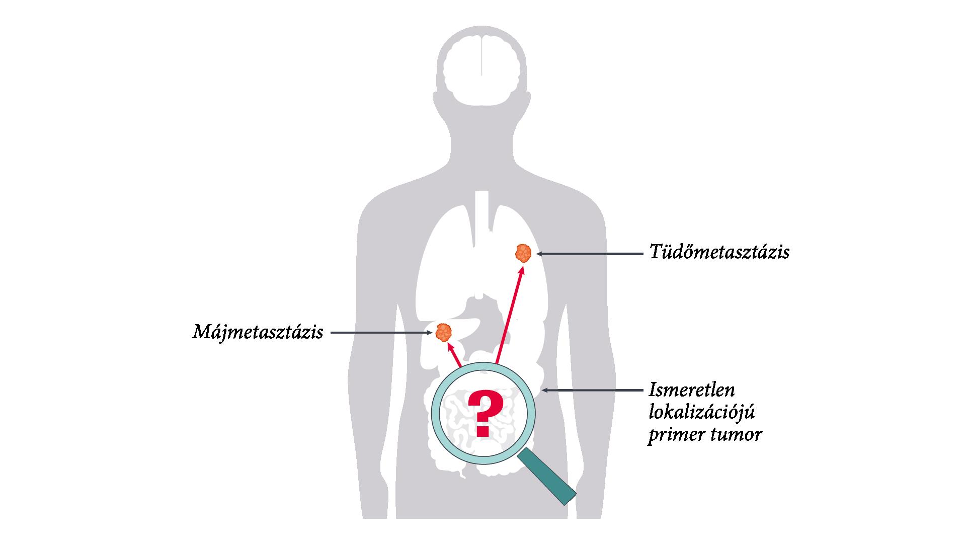 A vastagbélrák örökletes formái és a genetikai szűrés