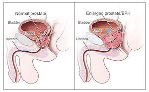 Mi mit jelent a prosztatarák patológiai leletén?