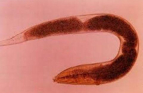 A pinworm tojások enterobiasisának lekaparása
