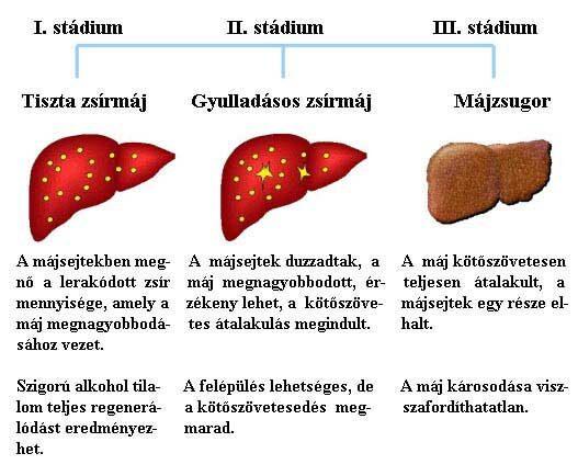 papilloma kezelése asd