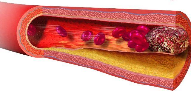 vastagbélrákos táska gyógyszerek paraziták kezelésére az emberi testben