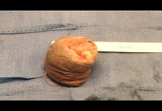 HPV Centrum - Istenhegyi Géndiagnosztika Klinika