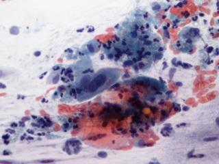 hpv vírus ajtó ember férgek kerékférgek