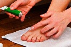 repedések az ujjak kezelése között