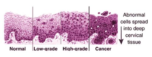 a papilloma kezelést okoz