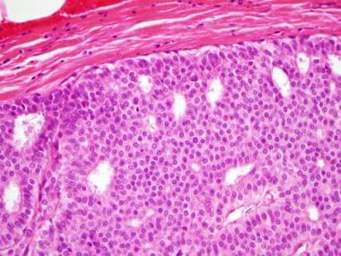 intraductalis papilloma fokális atypiával