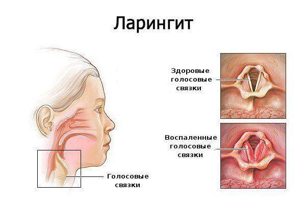 Honnan származik az orr?