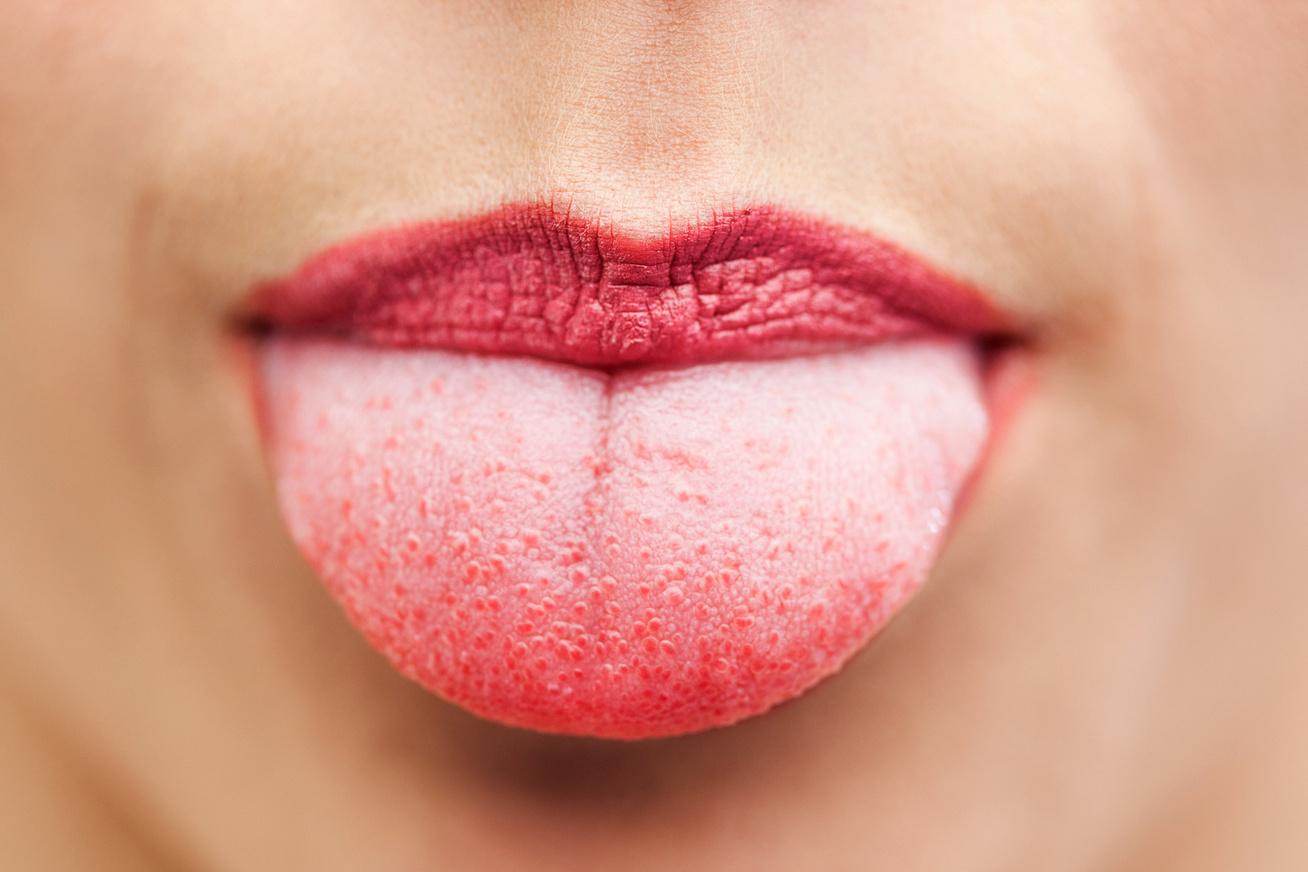 amelyet az orvos a szájban lévő papillómákkal kezel gyomorrák nincsenek tünetei