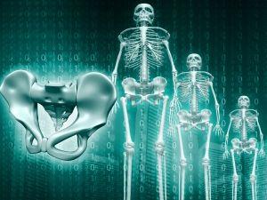 jóindulatú csontrák