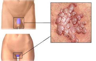 a nemi szemölcsök műtéti kivágása