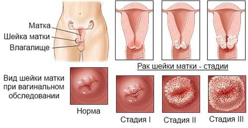 A genitális szemölcsök jelenlétének oka, ha a HPV-negatív tesztet - Gyerekek October