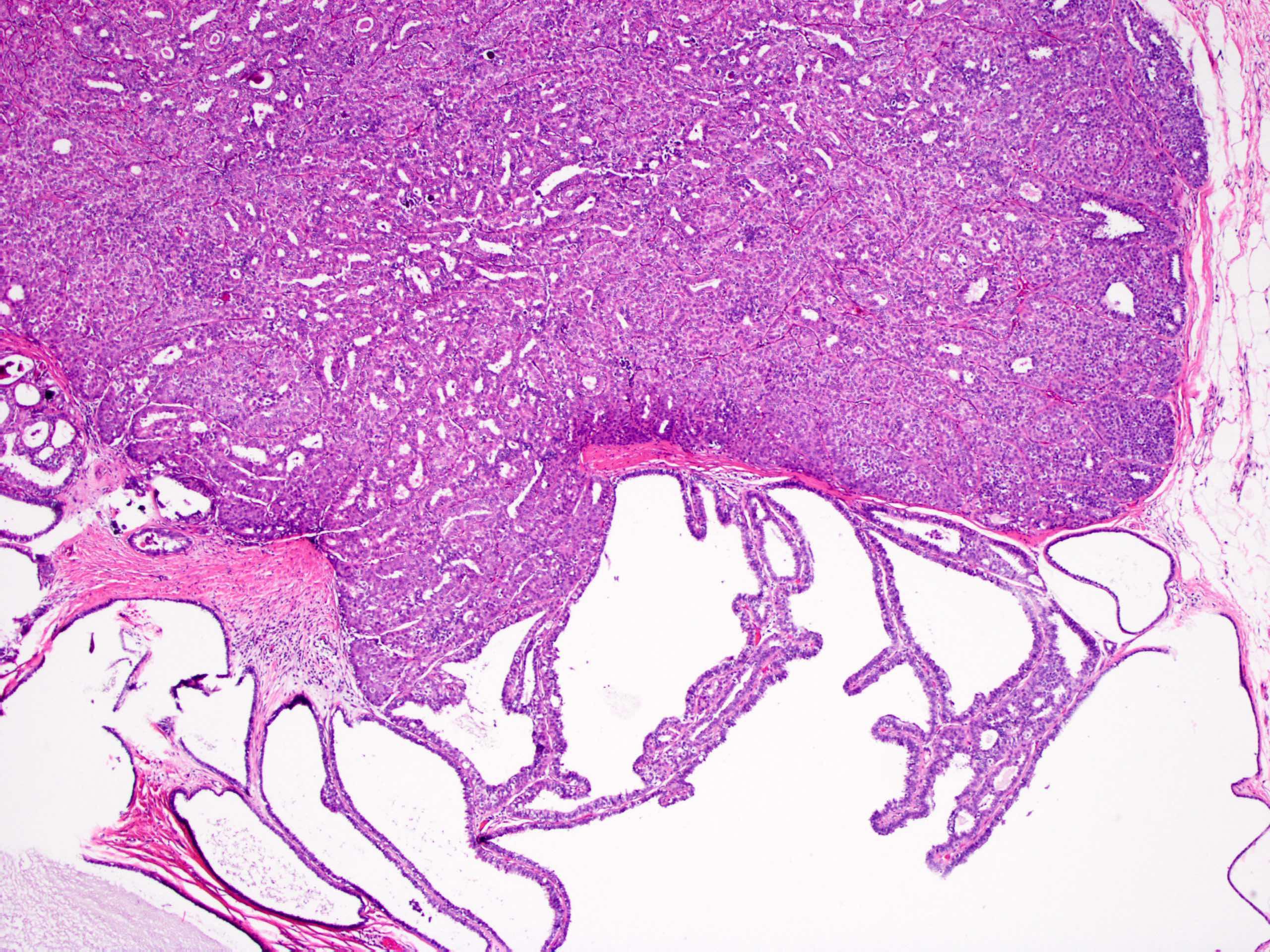 intraductalis papilloma és ductalis papilloma
