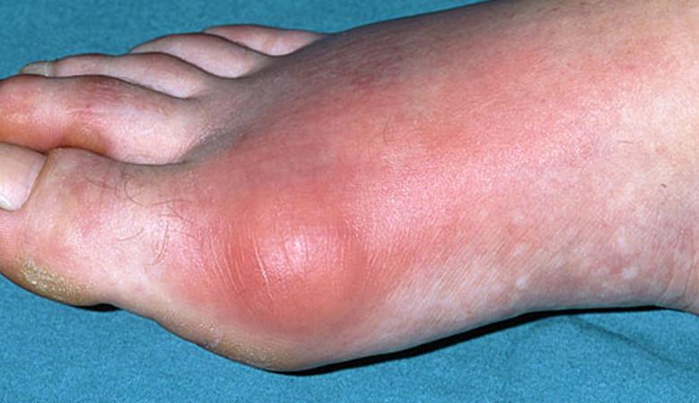 vörösség a lábujjak között