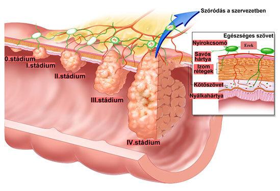 milyen tüneteket okoz a vastagbélrák