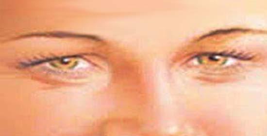 papilloma a szem közelében férgek 4 éves gyermekek